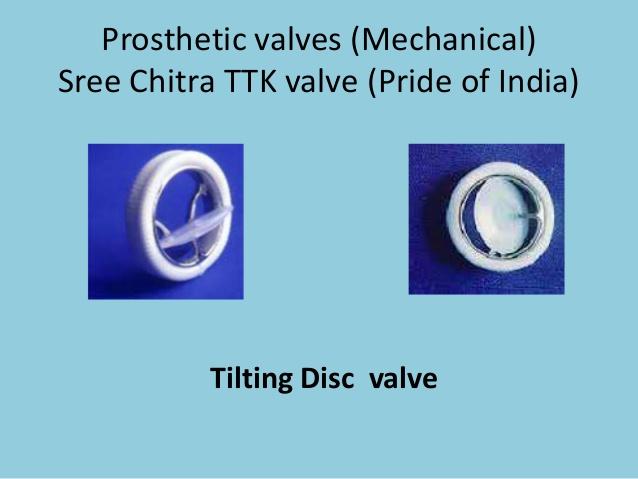 sree valve
